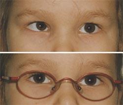 Мышцы глаз и близорукость