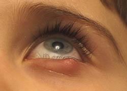 inre vagel övre ögonlock