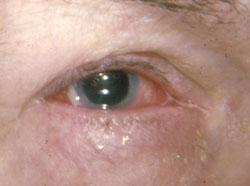 Silmä Verestää