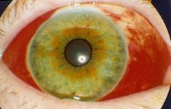 silmiä kutittaa ja punoittaa